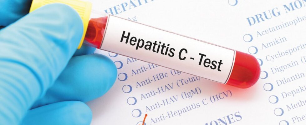 Hepatitis infection